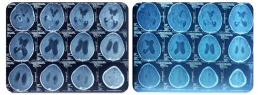Fio dan Kanker di Batang Otaknya 2
