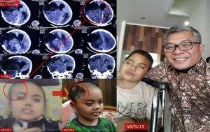 Semangat Kenji Melawan Tumor Otak